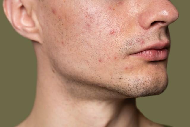 حب-الشباب-acne.jpg
