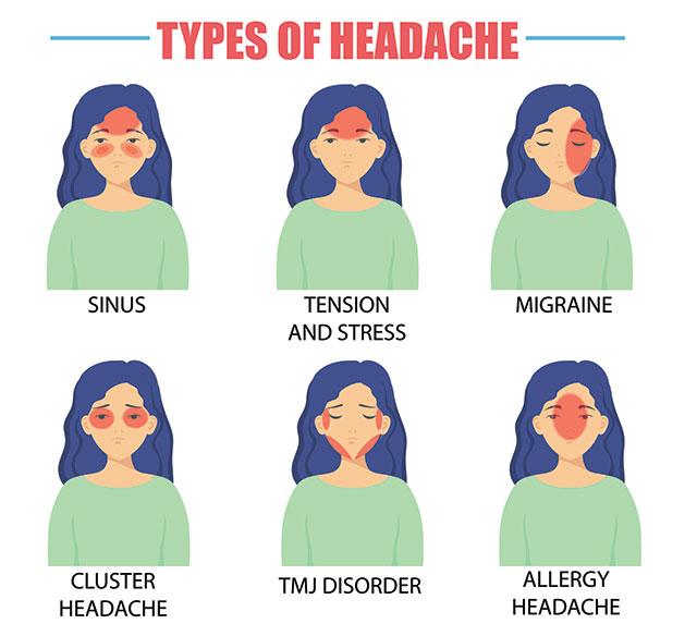 Different-types-of-headaches.jpg