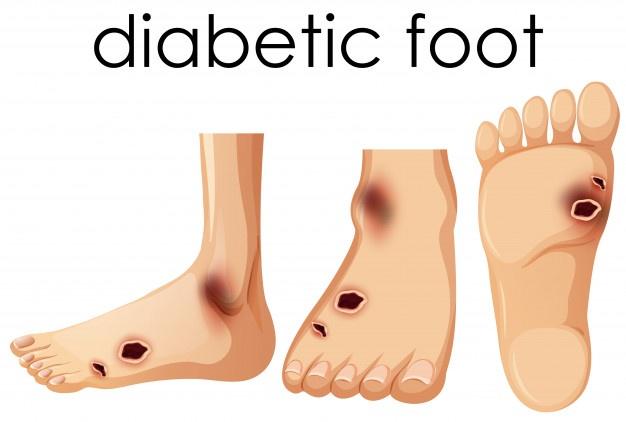 human-foot-with-diabetic.jpg