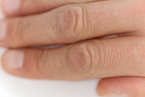 أسباب جفاف البشرة | كيفية العناية بالجلد الجاف