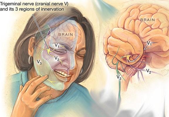 ألم عصبي Neuralgia