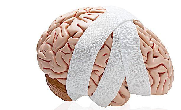 الارتجاج Concussion