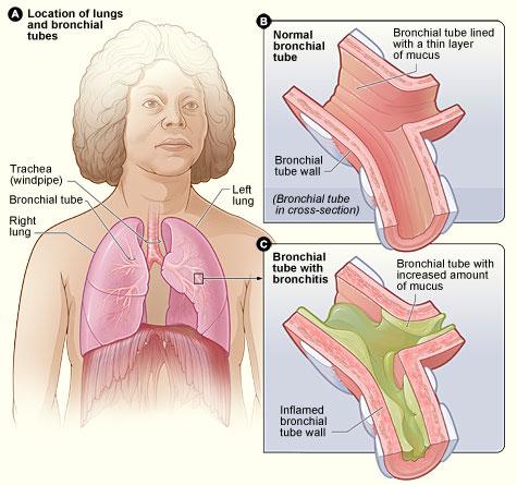الالتهاب-الشعبي-الحاد-Acute-bronchitis
