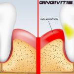 التهاب اللثة | إلتهاب النسيج المحيط بالأسنان
