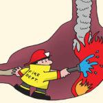 الحموضة، حرقة المعدة Heartburn