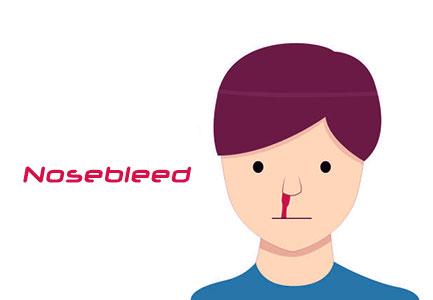 الرعاف | نزيف الانف Nosebleed Epistaxis