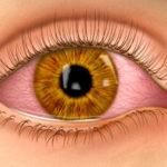 الرمد   احمرار العين   العين الحمراء Pink eye - Conjunctivitis