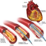 العلاج بالبالون والقثطار | رأب الوعاء التاجي Balloon Angioplasty