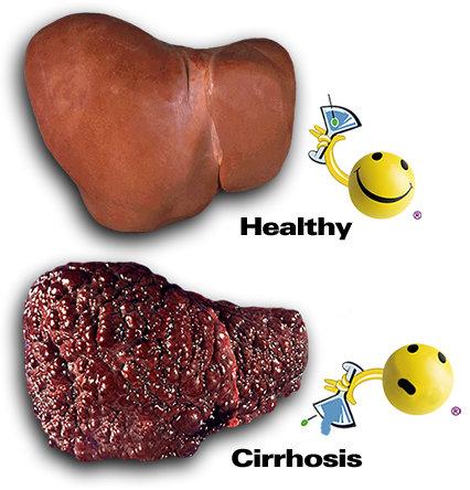 التليف الكبدي Cirrhosis