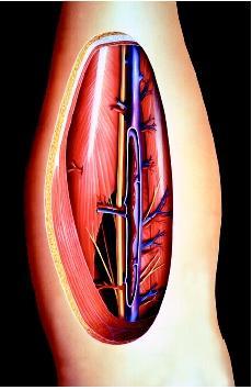 جلطة الساق   الجلطة في القدم   الخثار الوريدي