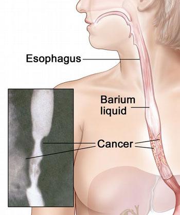 سرطان المريء Esophageal cancer