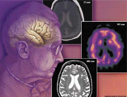 الخرف | العته Dementia