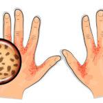 علاج الجرب Scabies