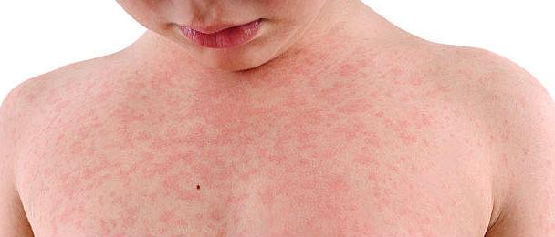 علاج الحصبة الالمانية   الاعراض وخطر الاصابة German Measles