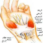 اوجاع وتنميل اليد | متلازمة النفق الرسغي carpal tunnel syndrome