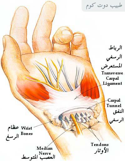 اوجاع وتنميل اليد   متلازمة النفق الرسغي carpal tunnel syndrome