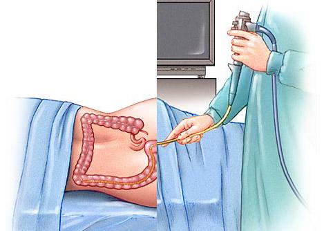 منظار القولون والمستقيم المرن Flexible Sigmoidoscopy