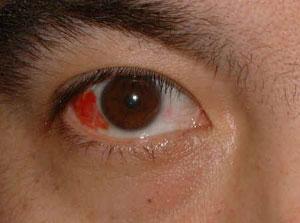 نزيف تحت ملتحمة العين Subconjunctival hemorrhage bleed