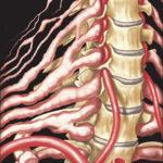 الالتهاب العصبي الليفي   ورم ليفي عصبي Neurofibromatosis