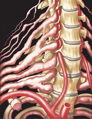 الالتهاب العصبي الليفي | ورم ليفي عصبي Neurofibromatosis