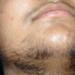 الشعر الزائد على جسد المرأة | الشعرانية Excessive Hair Growth
