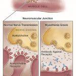 الوهن العضلي الشديد Myasthenia Gravis