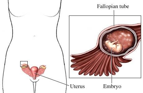 الحمل خارج الرحم Ectopic Pregnancy | الأسباب، التشخيص، العلاج