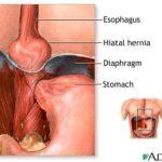 التهاب المريء inflammation of esophagus
