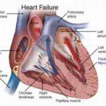 قصور القلب   مرض خطير صامت