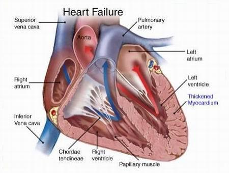 قصور القلب | مرض خطير صامت