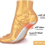 الم العقب ، ألم عظم كعب القدم Heel pain