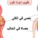 ما علاج حصوات الكلية | حصى الكلى | الحصوة الكلوية Kidney stones