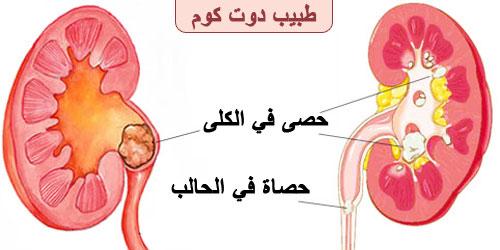 ما علاج حصوات الكلية   حصى الكلى   الحصوة الكلوية Kidney stones