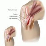 التهاب الكيس الزلالي، التهاب الجراب Bursitis