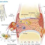 علاج التهاب المفاصل في المنزل Arthritis