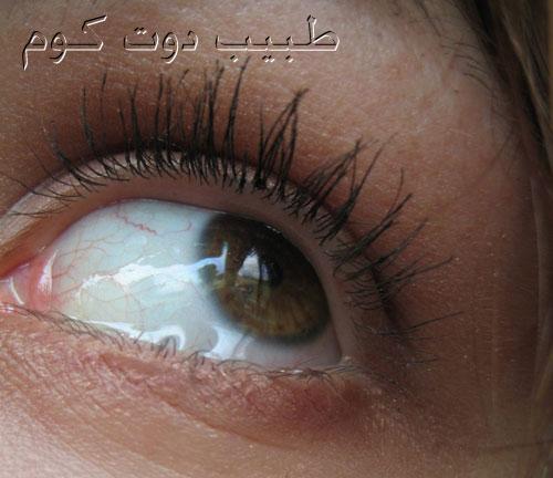 كثرة الدموع، العيون الدامعة، فرط أو غزارة الدموع Watery eyes, excess tearing