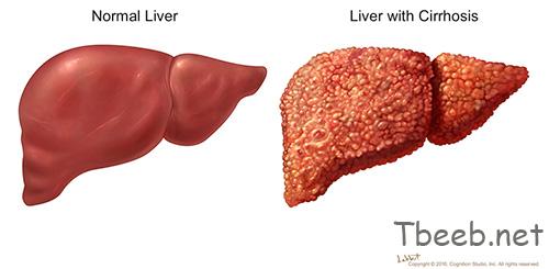 تشمع الكبد Cirrhosis