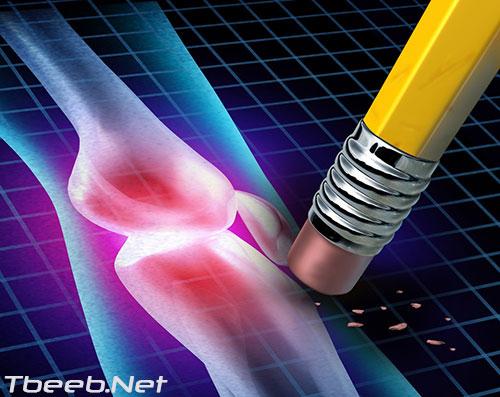 علاج ألم الروماتويد والتهاب المفاصل