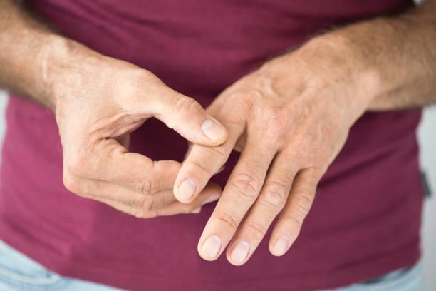 علاج الروماتويد في الطب | العلاج الدوائي والبيولوجي الحيوي والجراحي