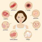 حب الشباب في الحمل Pregnancy Acne