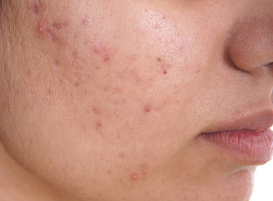 حب الشباب في الحمل acne