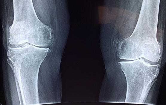 الروماتيزم التهاب المفاصل Arthritis