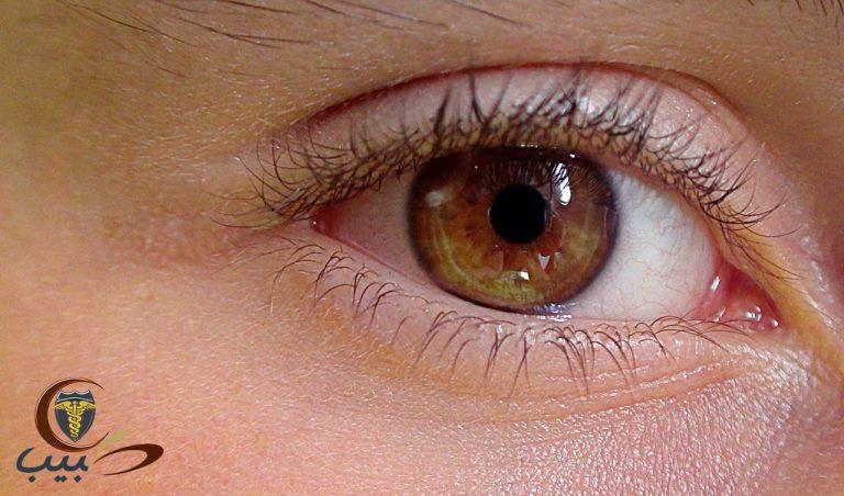 مشاكل العيون