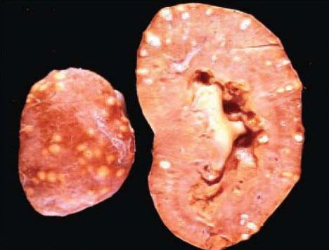 التدرن أو السل الكلوي Renal tuberculosis
