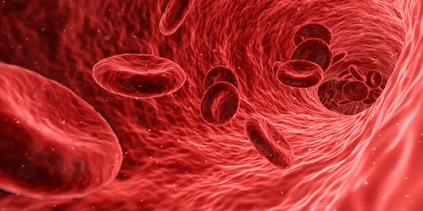تسمم الدم، إنتان الدم وعفونته blood poisoning or septicemia