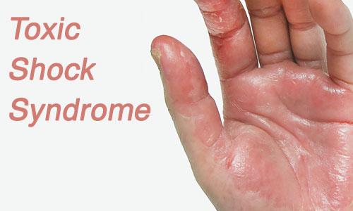 متلازمة الصدمة التسممية Toxic Shock Syndrome