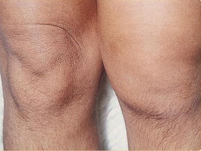 التهاب المفاصل الارتكاسي   متلازمة ريترز Reiter's Syndrome