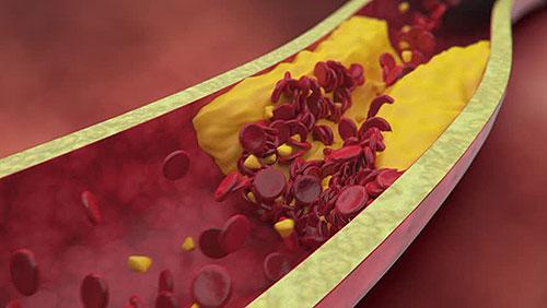 عوامل خطر مرض القلب التاجي – نوبة قلبية