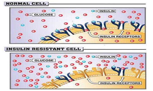 الرياضة لو كنت تعاني ارتفاع الأنسولين