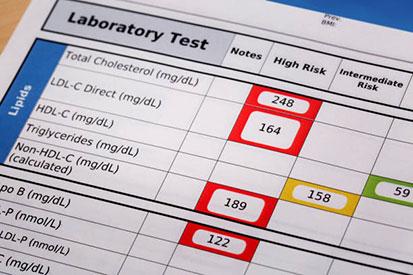 افحص مستويات الكوليسترول